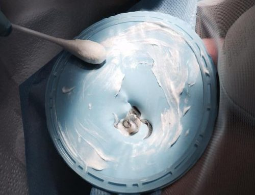 Dental dams and HgX cream reduces mercury exposure to patients
